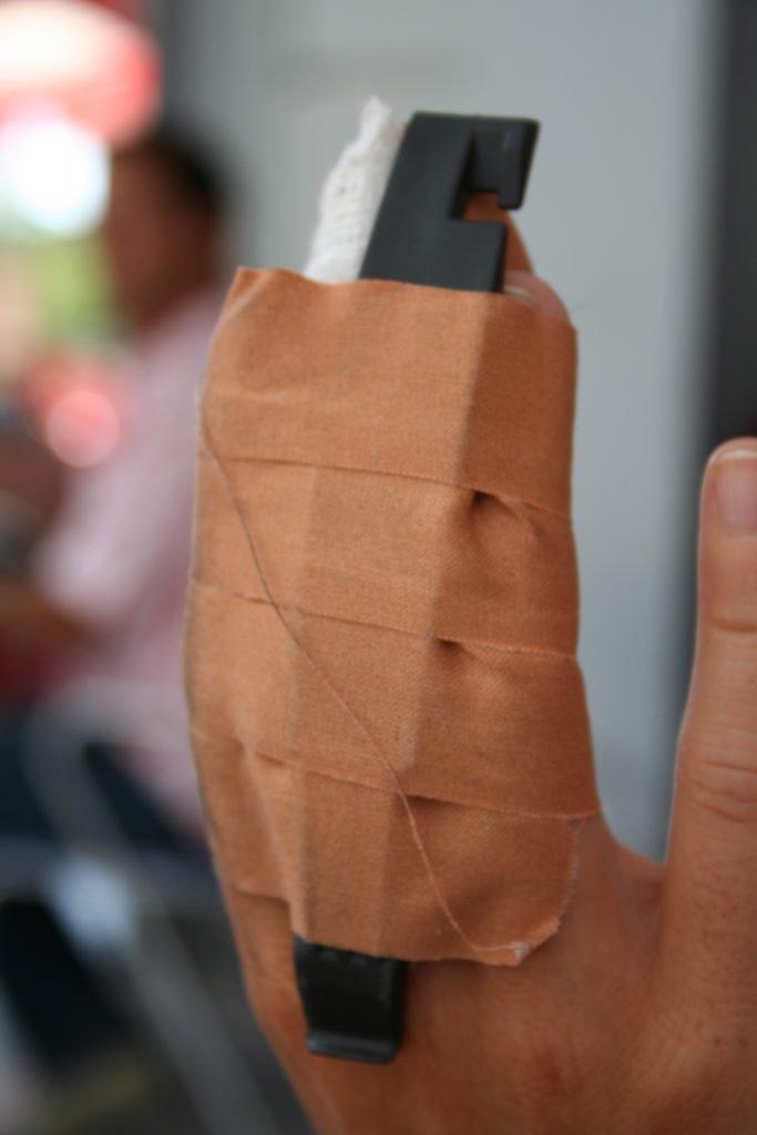 El dolor agudiza el ingenio: dedo entablillado con un desmontador y asunto arreglado: el mejor analgésico